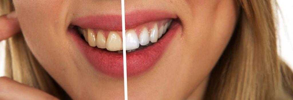 Naravno beljenje zob 1